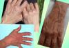 Ще залавят престъпници по конфигурацията на вените на ръцете