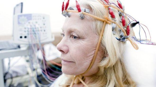 boston university brain stimulation