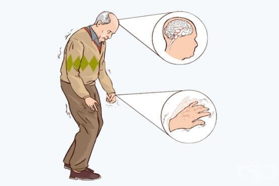 болест на Паркинсон